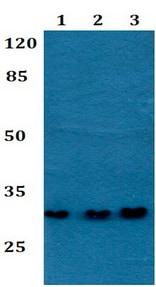 Western blot - Anti-NXPH2 antibody (ab192510)