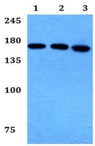 Western blot - Anti-Myosin IIIB antibody (ab192528)
