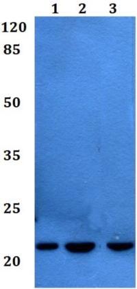 Western blot - Anti-CD42c/GP1BB antibody (ab192541)