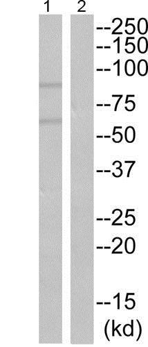 Western blot - Anti-Hck (phospho Y522) antibody (ab192578)