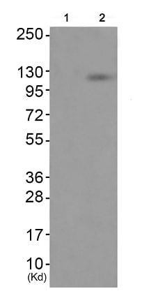 Western blot - Anti-Eph receptor A7/EPHA7 (phospho Y791) antibody (ab192585)