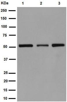 Western blot - Anti-UFSP2 antibody [EP13424-49] (ab192597)