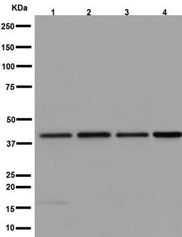 Western blot - Anti-Aprataxin antibody [EPR8751] (ab192598)