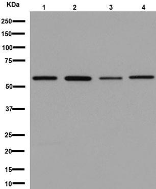 Western blot - Anti-Glucose Transporter GLUT2 antibody [EPR16550] (ab192599)