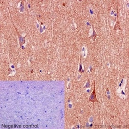 Immunohistochemistry (Formalin/PFA-fixed paraffin-embedded sections) - Anti-SNPH antibody [EPR14115(2)] (ab192605)