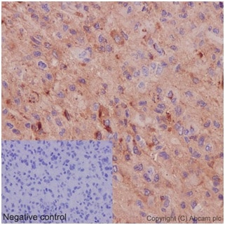 Immunohistochemistry (Formalin/PFA-fixed paraffin-embedded sections) - Anti-LIPH antibody [EP12065] (ab192615)