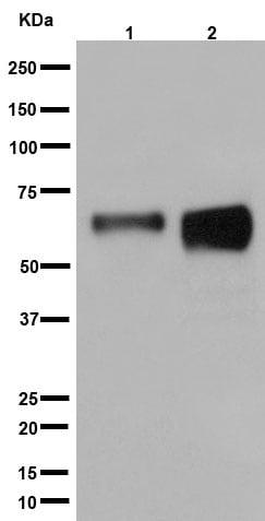 Western blot - Anti-LIPH antibody [EP12065] (ab192615)