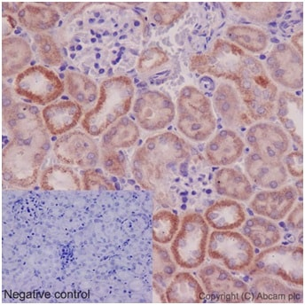 Immunohistochemistry (Formalin/PFA-fixed paraffin-embedded sections) - Anti-UCHL5IP antibody [EPR15341-56] (ab192616)