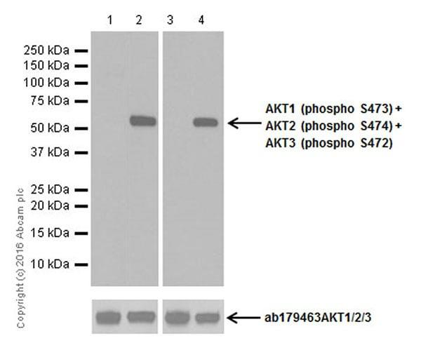 Western blot - Anti-AKT3 (phospho S472) + AKT2 (phospho S474) + AKT1 (phospho S473) antibody [EPR18853] (ab192623)