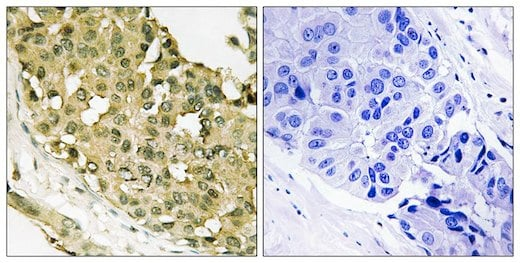 Immunohistochemistry (Formalin/PFA-fixed paraffin-embedded sections) - Anti-Stathmin 1 (phospho S63) antibody (ab192648)