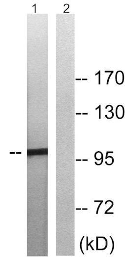 Western blot - Anti-MERTK (phospho Y749) + TYRO3 (phospho Y681) antibody (ab192649)