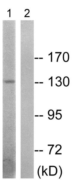 Western blot - Anti-Insulin Receptor (phospho T1375) antibody (ab192657)