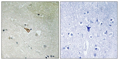 Immunohistochemistry (Formalin/PFA-fixed paraffin-embedded sections) - Anti-ALK (phospho Y1096) antibody (ab192661)
