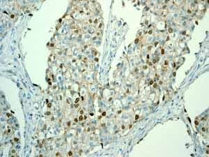 Immunohistochemistry (Formalin/PFA-fixed paraffin-embedded sections) - Anti-Survivin antibody [EP2880Y] - BSA and Azide free (ab192675)