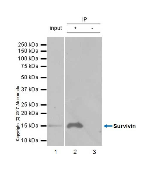 Immunoprecipitation - Anti-Survivin antibody [EP2880Y] - BSA and Azide free (ab192675)