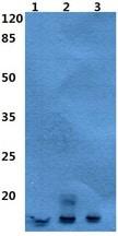Western blot - Anti-Neutrophil defensin 4 antibody - N-terminal (ab192765)