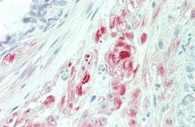 Immunohistochemistry (Formalin/PFA-fixed paraffin-embedded sections) - Anti-PTPLA antibody - N-terminal (ab192772)