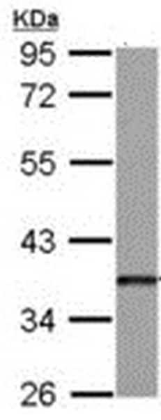 Western blot - Anti-Dkk3 antibody (ab192791)