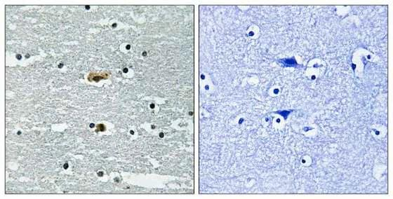 Immunohistochemistry (Formalin/PFA-fixed paraffin-embedded sections) - Anti-SPAK (phospho S309) antibody (ab192798)