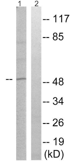 Western blot - Anti-CRMP2 (phospho T509) antibody (ab192799)