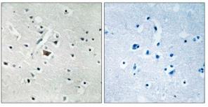 Immunohistochemistry (Formalin/PFA-fixed paraffin-embedded sections) - Anti-PLD2 (phospho Y169) antibody (ab192804)