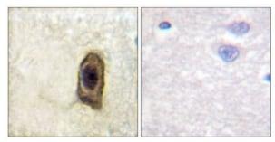Immunohistochemistry (Formalin/PFA-fixed paraffin-embedded sections) - Anti-CSF-1-R (phospho Y561) antibody (ab192810)