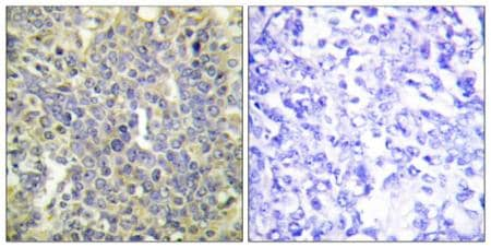 Immunohistochemistry (Formalin/PFA-fixed paraffin-embedded sections) - Anti-Caspase-9 (phospho T125) antibody (ab192815)