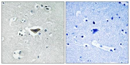 Immunohistochemistry (Formalin/PFA-fixed paraffin-embedded sections) - Anti-CDC25 (phospho S916) antibody (ab192816)