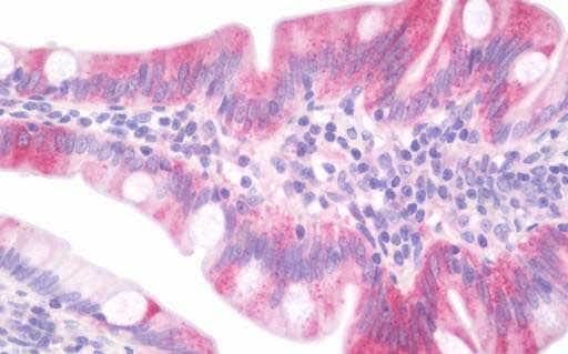Immunohistochemistry (Formalin/PFA-fixed paraffin-embedded sections) - Anti-Dab1 antibody (ab192823)