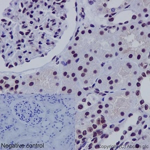 Immunohistochemistry (Formalin/PFA-fixed paraffin-embedded sections) - Anti-SNF5/SMARCB1 antibody [EPR12014-77] (ab192864)
