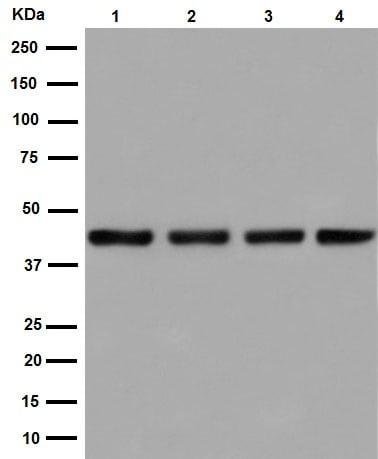 Western blot - Anti-SNF5/SMARCB1 antibody [EPR12014-77] (ab192864)