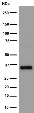 Western blot - Anti-AKR1B10 antibody [EPR14421] (ab192865)