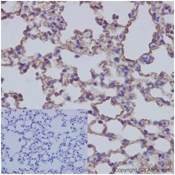 Immunohistochemistry (Formalin/PFA-fixed paraffin-embedded sections) - Anti-Caveolin-1 antibody [EPR15554] - N-terminal (ab192869)