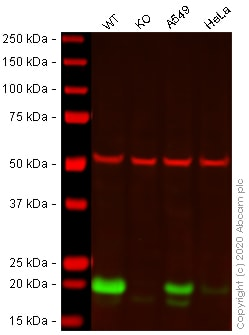 Western blot - Anti-Caveolin-1 antibody [EPR15554] - N-terminal (ab192869)