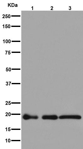 Western blot - Anti-NDUFB8 antibody [EPR15961] (ab192878)
