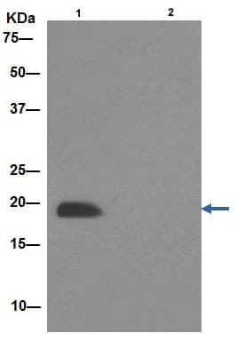 Immunoprecipitation - Anti-NDUFB8 antibody [EPR15961] (ab192878)