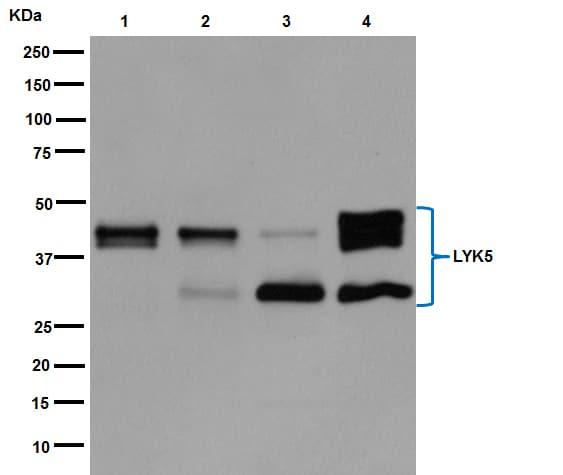 Western blot - Anti-STRAD antibody [EPR15603] (ab192879)