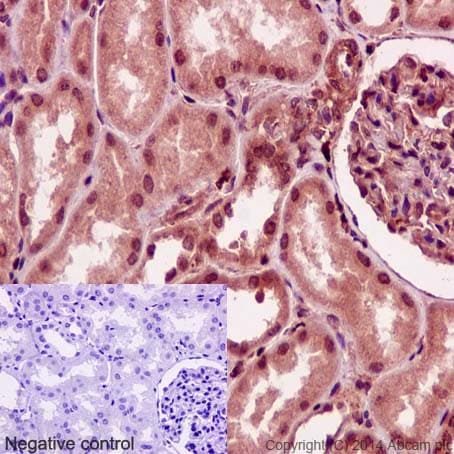 Immunohistochemistry (Formalin/PFA-fixed paraffin-embedded sections) - Anti-STRAD antibody [EPR15603] (ab192879)