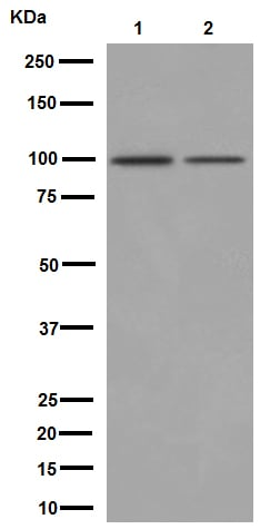 Western blot - Anti-Neuroligin 3 antibody [EPR16158] (ab192880)