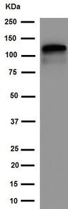 Western blot - Anti-KIF5C antibody [EPR16224] (ab192883)