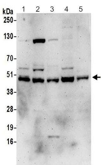 Western blot - Anti-DNAJA1 antibody (ab192904)