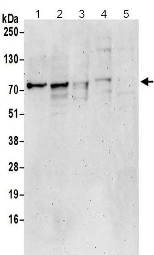 Western blot - Anti-Epsin 1 antibody (ab192908)