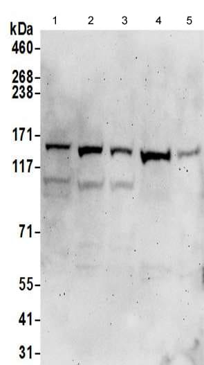 Western blot - Anti-alpha COP I/COPA antibody - C-terminal (ab192919)