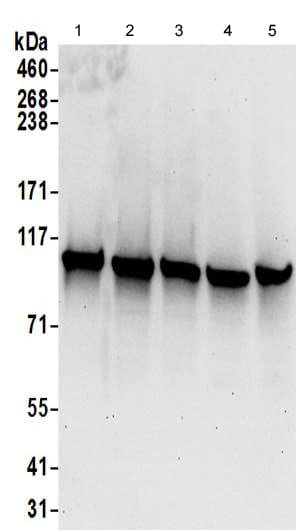Western blot - Anti-COPB2 antibody - C-terminal (ab192924)