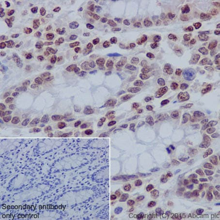 Immunohistochemistry (Formalin/PFA-fixed paraffin-embedded sections) - Anti-Histone H3 (tri methyl K27) antibody [EPR18607] - ChIP Grade (ab192985)