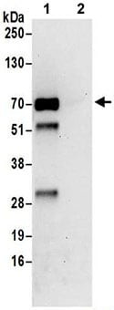 Immunoprecipitation - Anti-CTP synthase/CTPS antibody (ab192988)