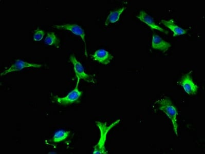 Immunocytochemistry/ Immunofluorescence - Anti-LRBA/BGL antibody - Membrane Vesicle Marker (ab193027)