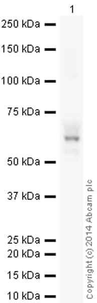 Western blot - Anti-Tyrosine Hydroxylase antibody [EP1533Y] (HRP) (ab193083)