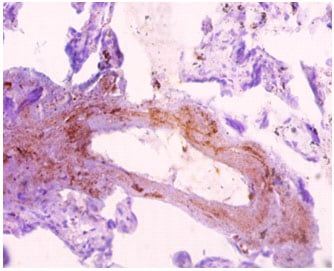 Immunohistochemistry (Formalin/PFA-fixed paraffin-embedded sections) - Anti-SNX20 antibody (ab193191)