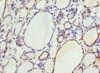 Immunohistochemistry (Formalin/PFA-fixed paraffin-embedded sections) - Anti-SEPP1 antibody (ab193193)